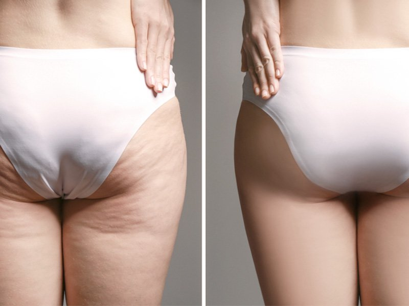 réduction de la cellulite