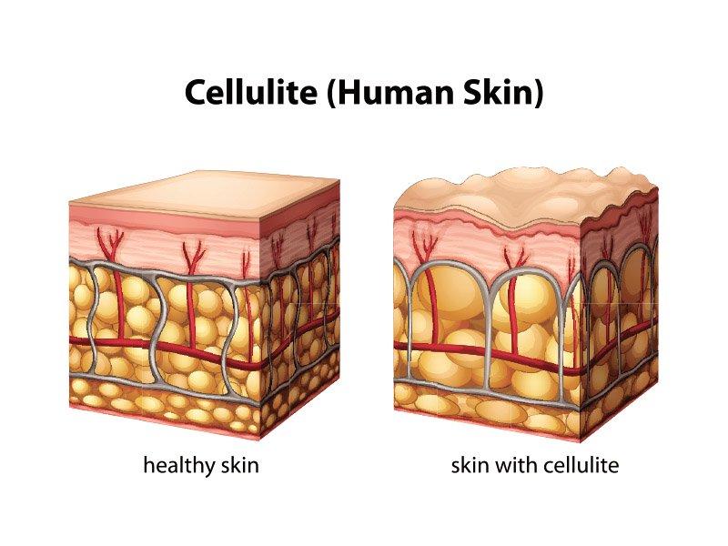 Cellulite cutanée